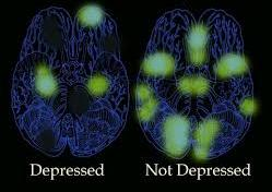 depressed and non depressed brains